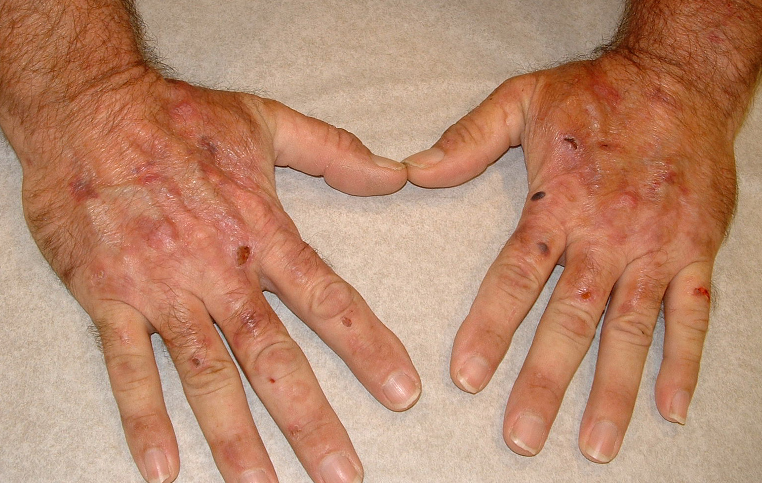 Hand-Foot-and-Mouth Disease on Hand 2 Picture Image on ...